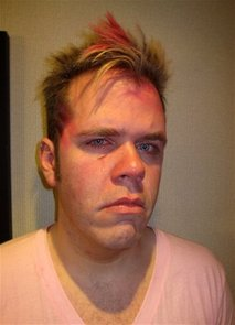 Canada Perez Hilton Punched