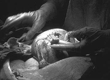 babyoperation